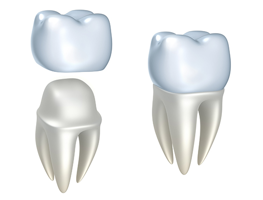 A diagram of a dental crown at Frank Hsu, D.D.S. in San Carlos, CA