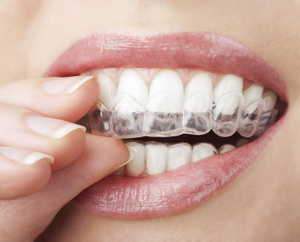 Putting in Invisalign clear aligners at San Carlos Dentists office of Frank Hsu, D.D.S..