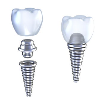 Dental Implant, Abutment and crown diagram used by San Carlos dentist at Frank Hsu, D.D.S..
